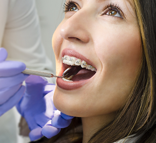 woman with braces being examined